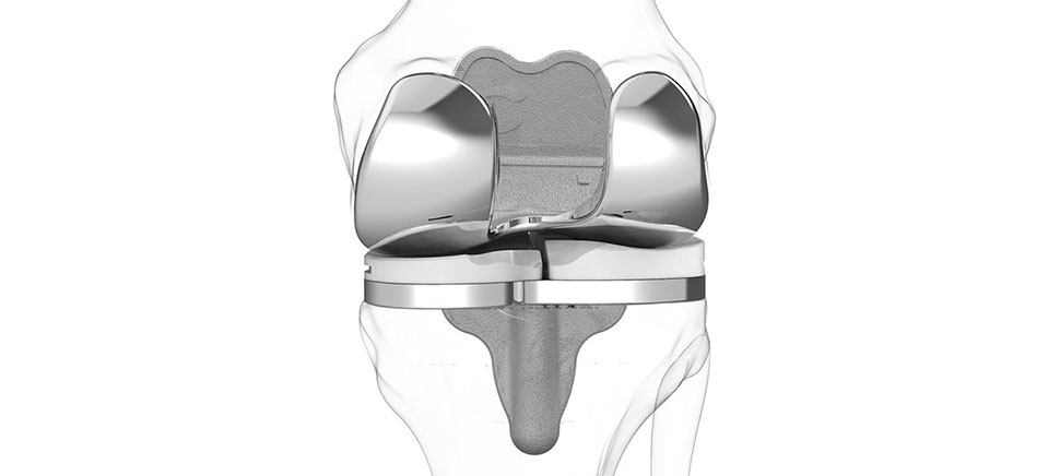 iTotal knee replacement
