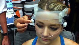 SMU Researchers Looking for Ways to Better Diagnose Concussions