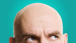 Researchers Make Discovery on <br/> Graying Hair, Balding